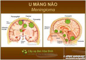 Cây xạ đen điều trị u màng não