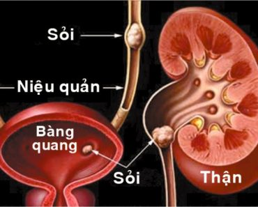 sỏi thận axit uric