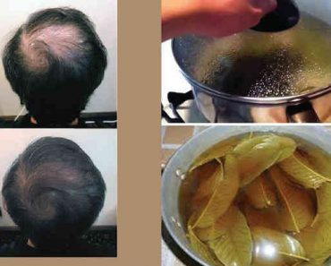 lá ổi điều trị rụng tóc