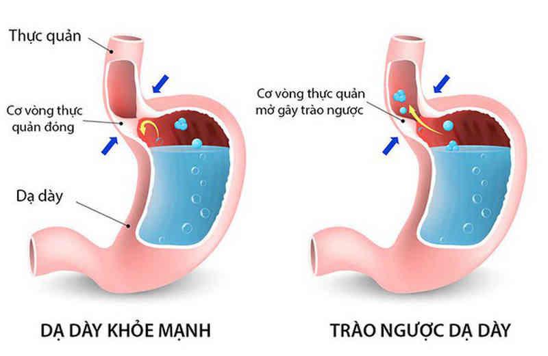 Trào ngược dạ dày thực quản kiêng ăn gì, nguyên nhân gây trào ngược