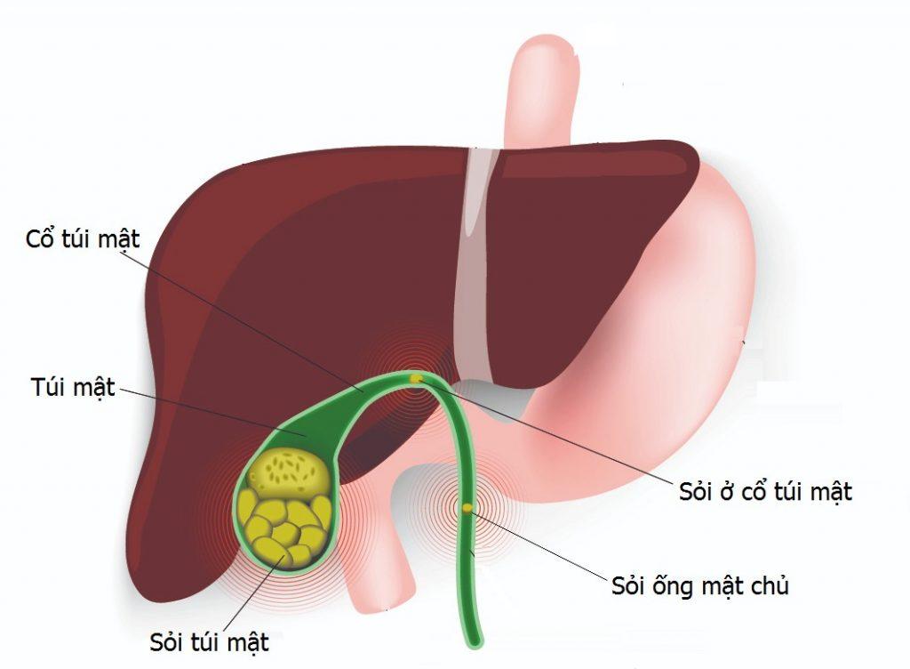 cây thuốc nam điều trị sỏi mật