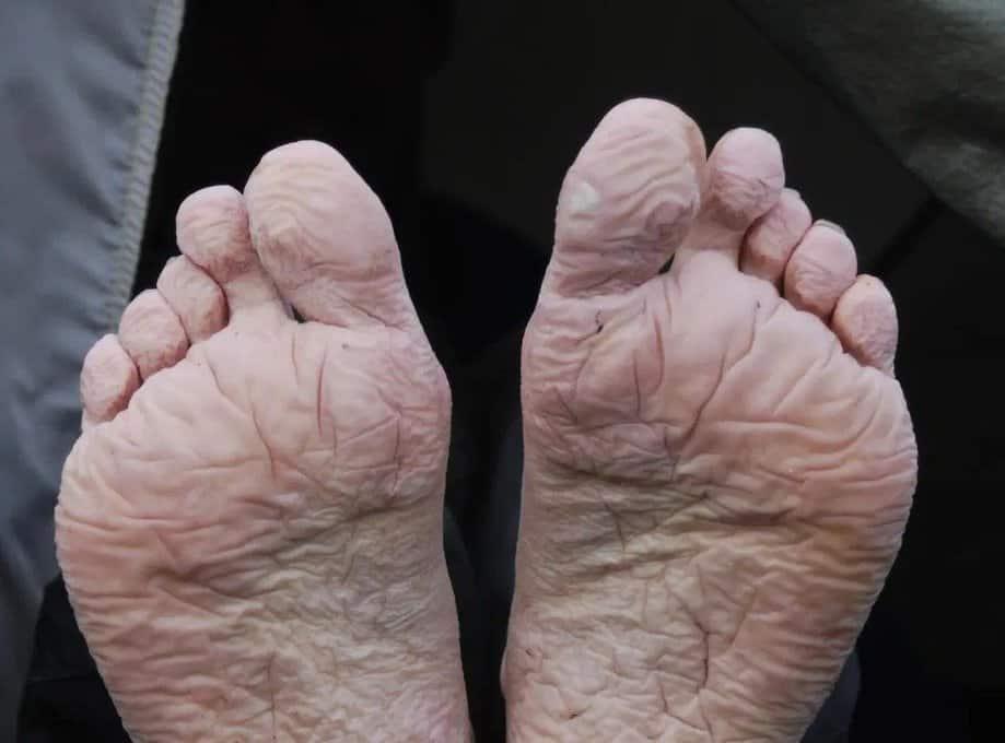 Hội chứng chân ngập nước, điều trị nước ăn chân (ảnh minh họa)