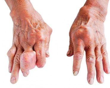 Bệnh gout (thống phong)