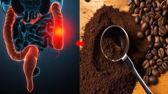 Nguy hại từ việc thải độc bằng cà phê qua đường hậu môn